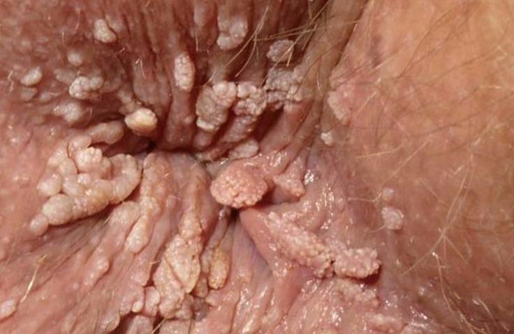 papiloma virus ano)