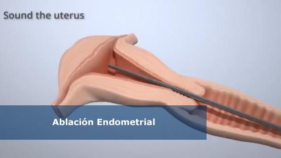 ablacion_endometrial