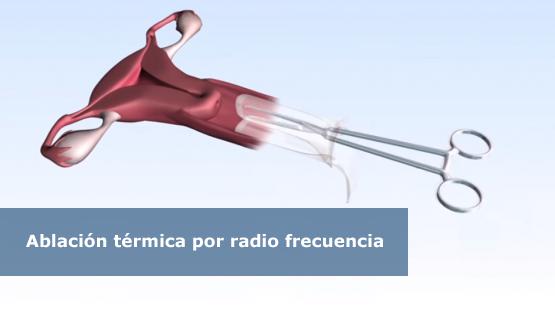 radio_frecuencia